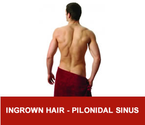 Ingrown hair - pilonidal sinus